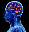 Neuro/Spinal